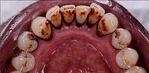 Bottom Teeth - Before GBT