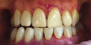 Front Teeth - After GBT
