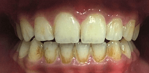 Front Teeth - Before GBT