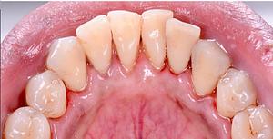 Bottom Teeth - After GBT
